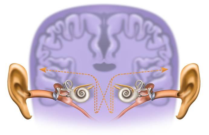 Neuromonics Cycle